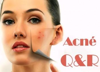 quelles sont les questions que vous vous posez à propos de votre acné