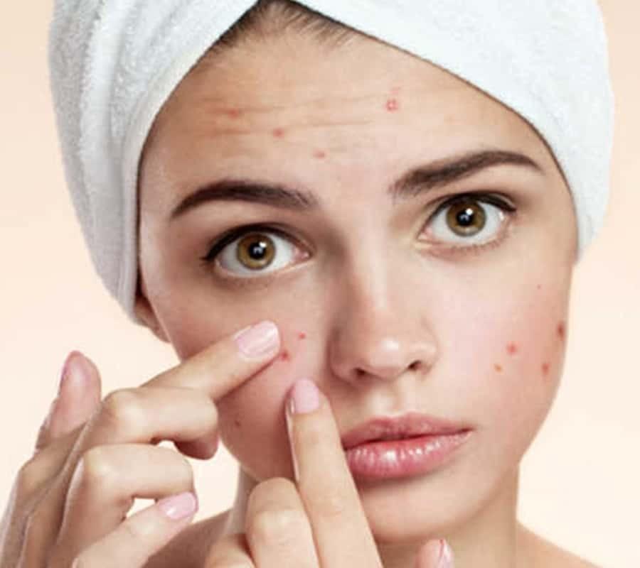 acne-desequilibre.jpg